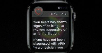 Así salvó el Apple Watch la vida de esta mujer